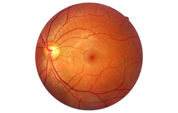 image of a healthy retina